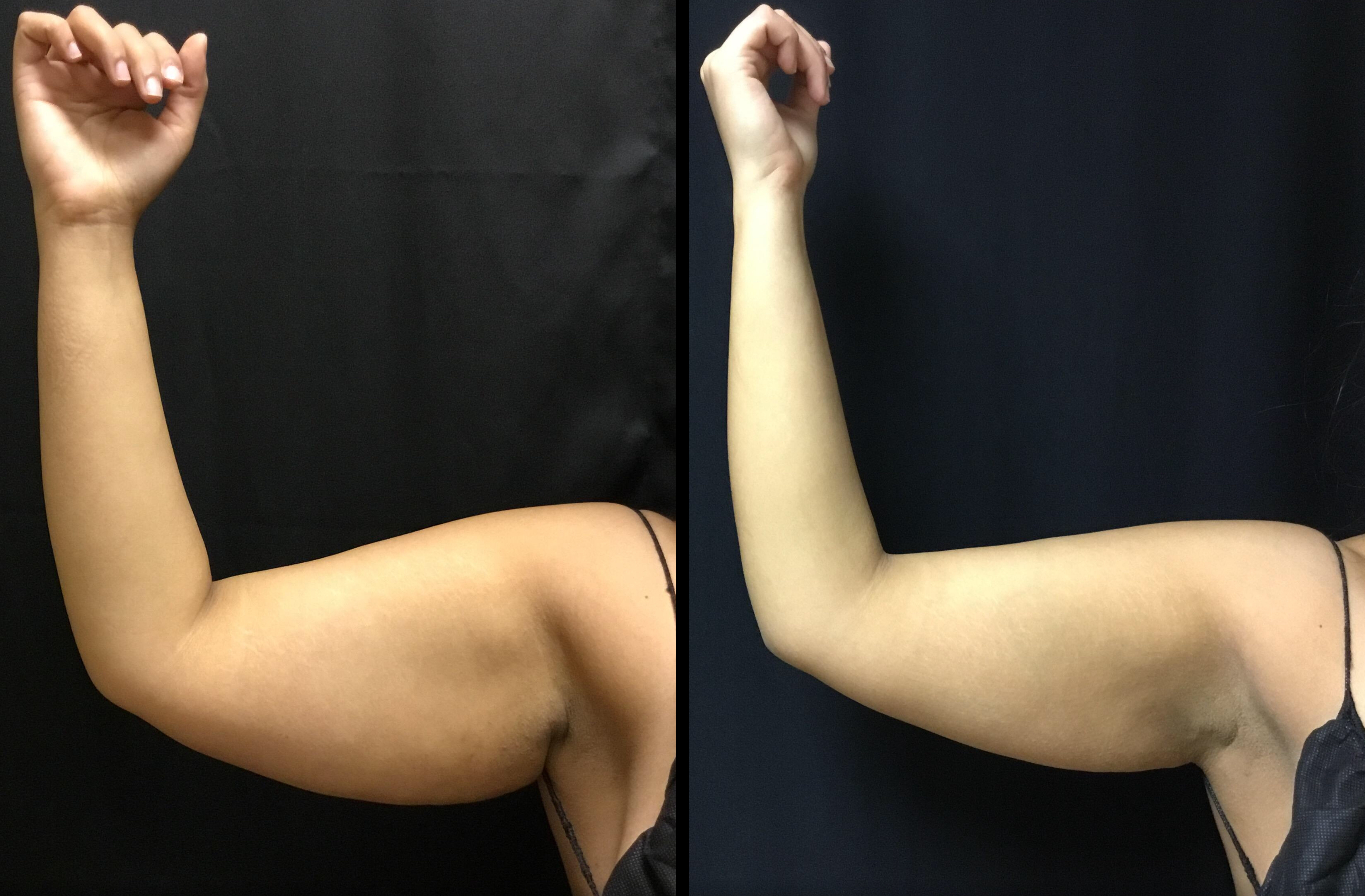 Scarless Arm Lift (BodyTite) (1)