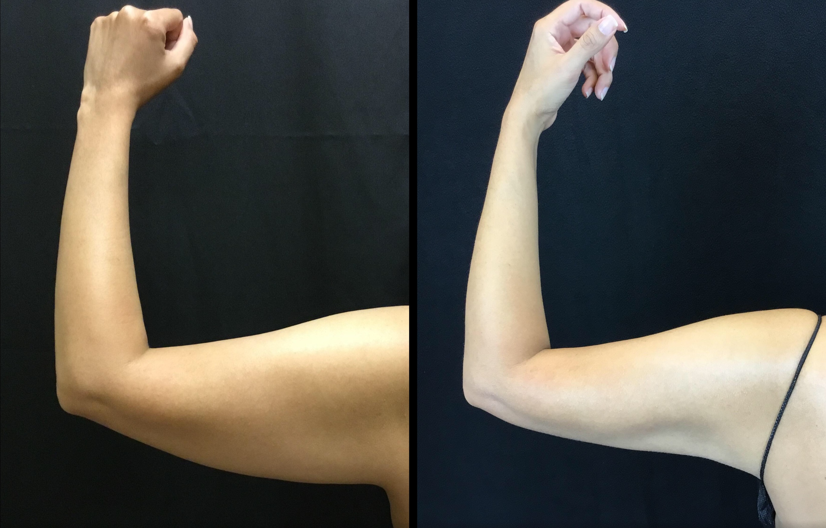 Scarless Arm Lift (BodyTite) (2)