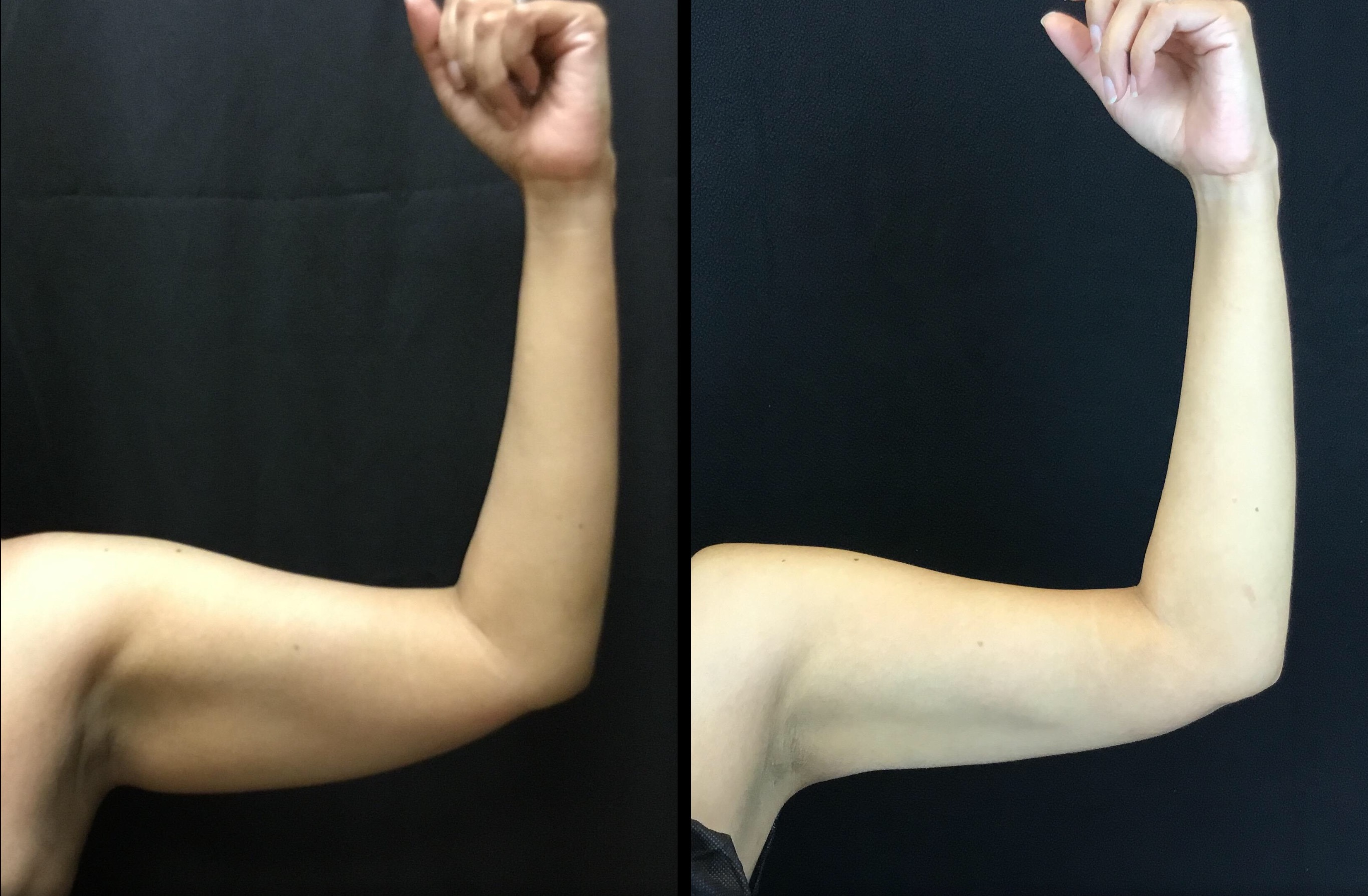 Scarless Arm Lift (BodyTite) (3)