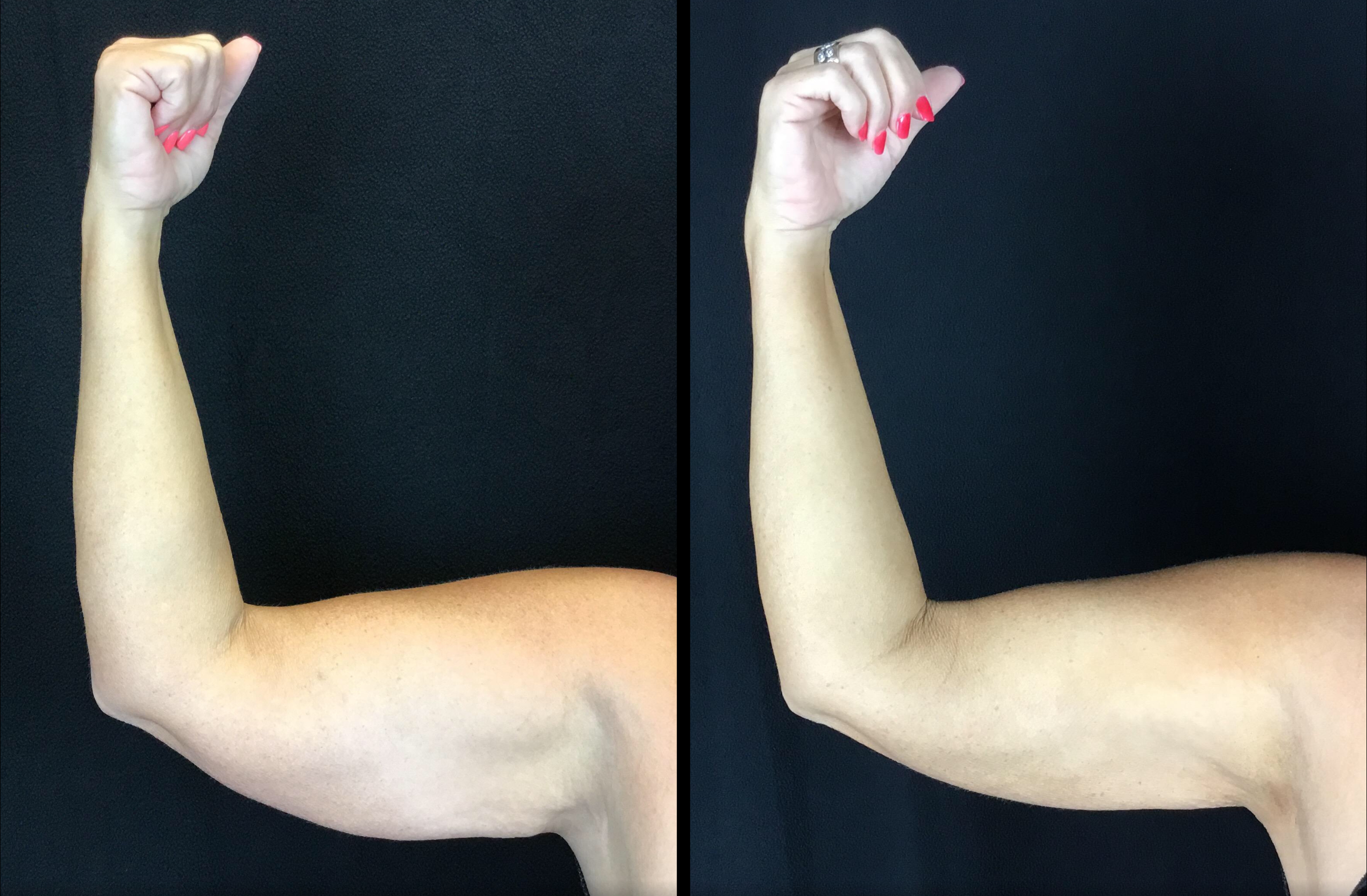 Scarless Arm Lift (BodyTite)